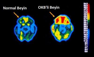 Ruhsal bozukluk nedir - OKB beyni